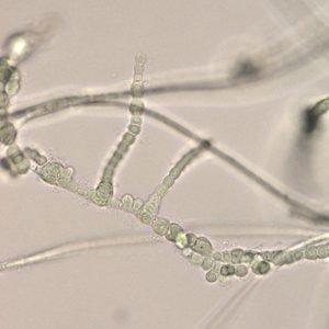 Reptodigitus chapmanii