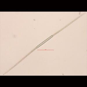 Aphanizomenon flos aquae