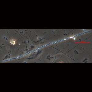 Aphanizomenon skujae