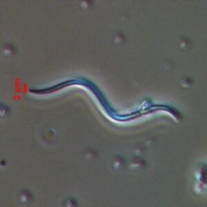 Glaucospira laxissima