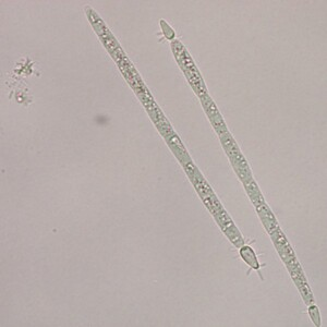 Raphidiopsis raciborskii