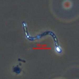 Raphidiopsis raciborskii coiled